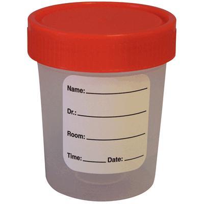 Sterile Disposable Specimen Container