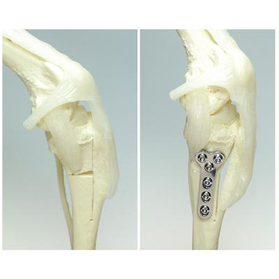 Triple Tibial Osteotomy (TTO)