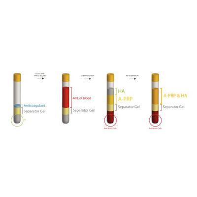 Rengen Cellular Matrix™ PRP & HA
