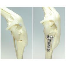 Tibial Osteotomy (TTO)